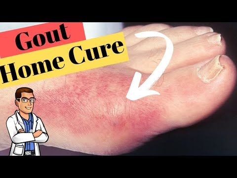 Gout Big Toe Joint Treatment [BEST Home Remedies 2020!] - YouTube