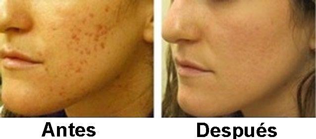 como quitar manchas muy oscuras de la piel