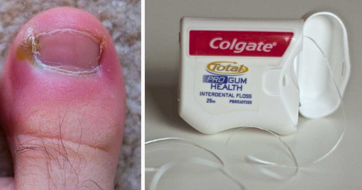 Ingrown Toenails Are Painful Here Are 8 Home Remedies To