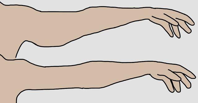súlyvesztés 40 éves kor előtt és után szobor zsírégetés