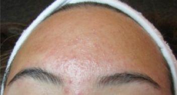 pityrosporum folliculitis behandling