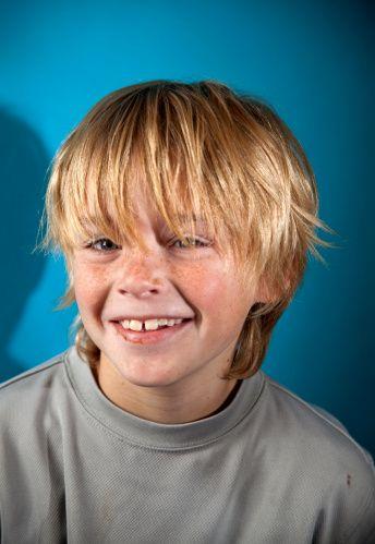 Freckled Boy Freckles Boys Face