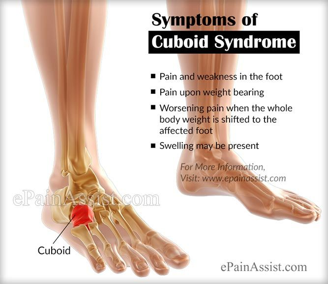 Cuboid Syndrome Or Cuboid Subluxation With Images Cuboid