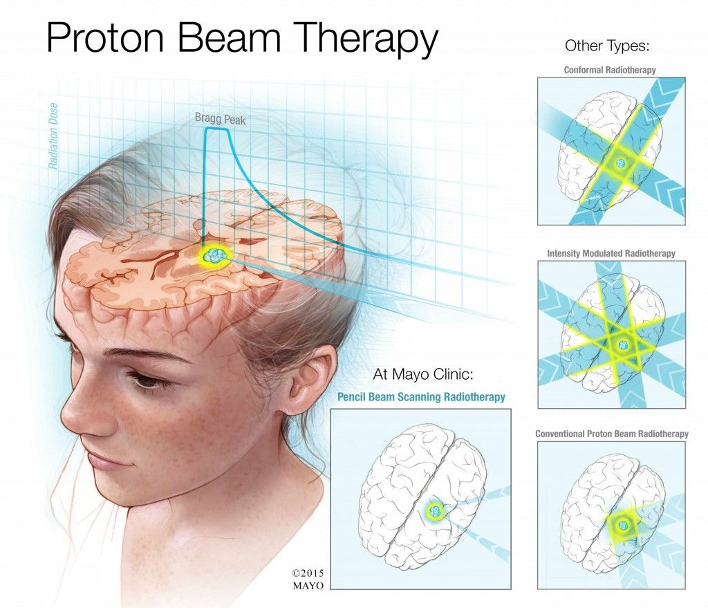 What Does Proton Beam Therapy Do For Cancer Patients That