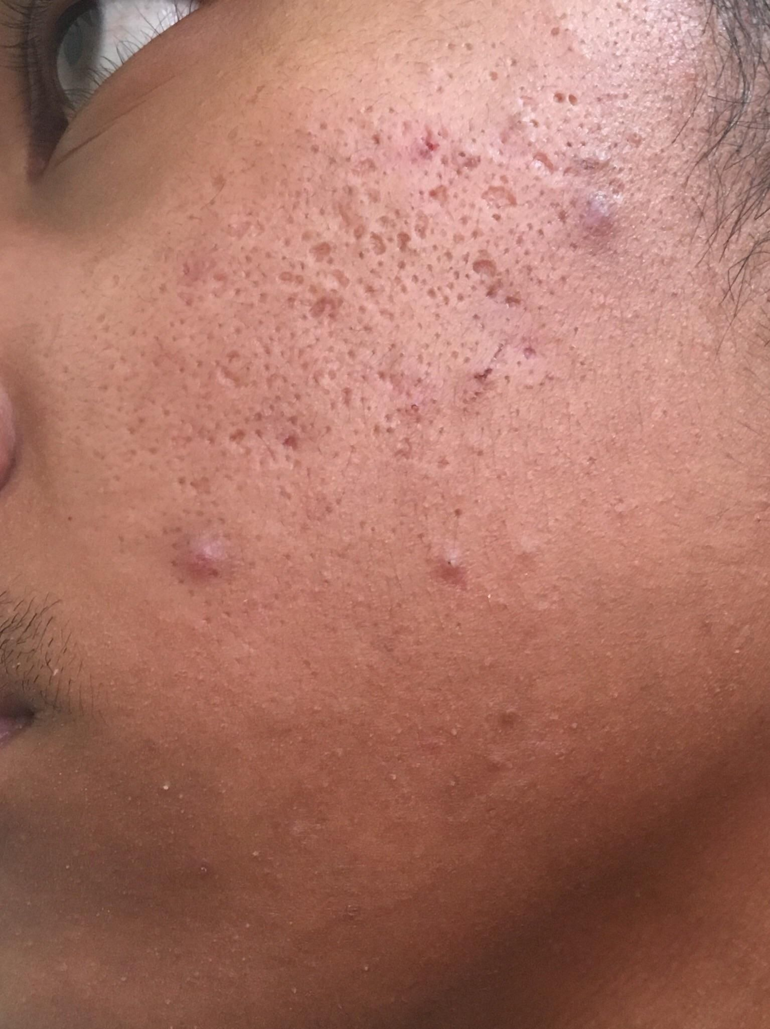 acne how do i get rid of my clogged pores enlarged pores and box