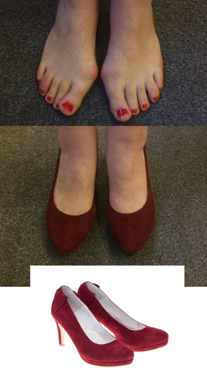 2043c6231e0d6 Comfortable high heels for bunion sufferers! The Sophia shoe is produced  using the finest goats leather