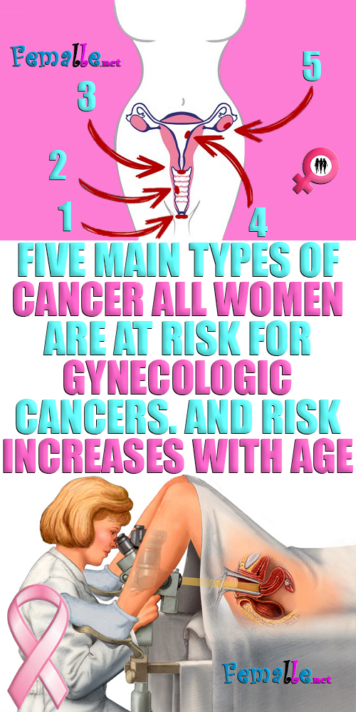 Five main types of cancer All women are at risk fo