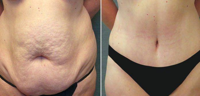Implantes anatomicos antes y despues de adelgazar