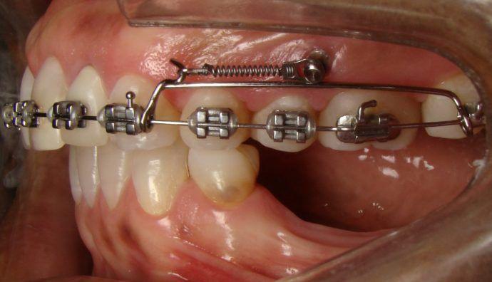 10 Ideas De Ortodoncia Ortodoncia Odontología Dental