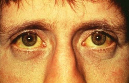 Jaundice Shows A Yellow Colour On The Skin As Well Whites Of Lyme Disease Eyes