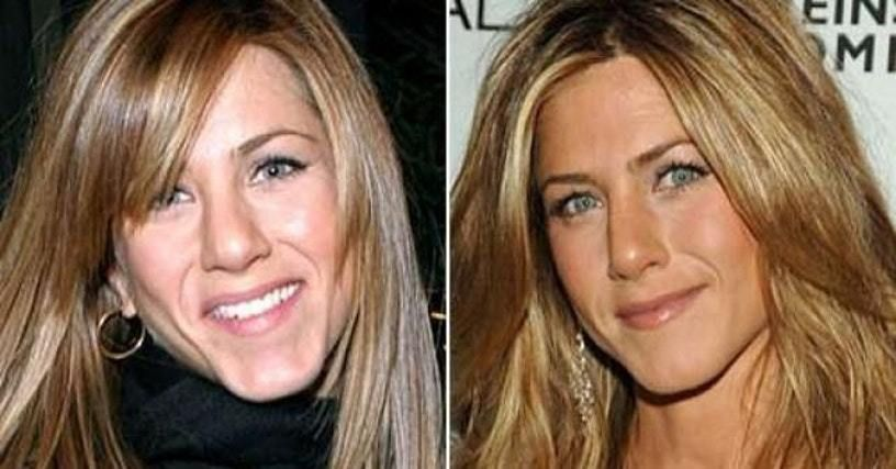 Celebrity Nose Jobs Before And After Nose Job Jennifer Aniston Plastic Surgery Cosmetic Surgery