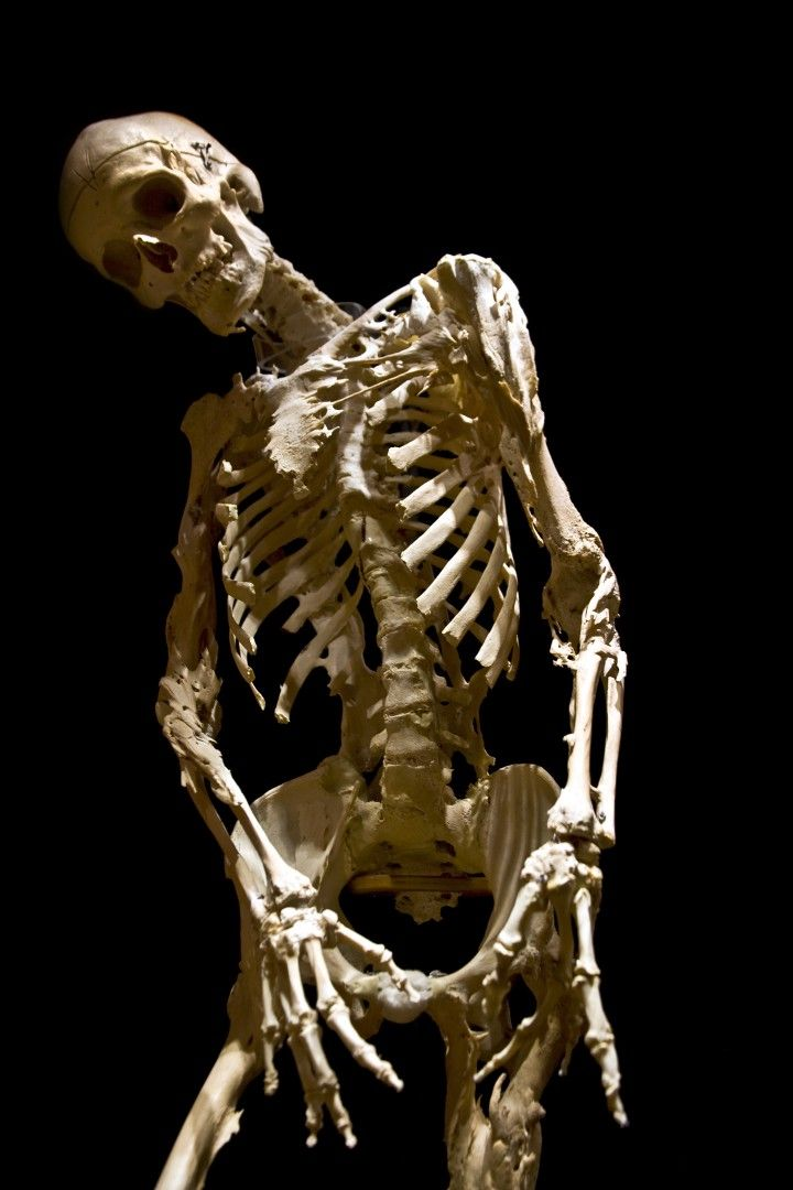 Skeleton Of Harry Eastlack  Sufferer Of Fibrodysplasia