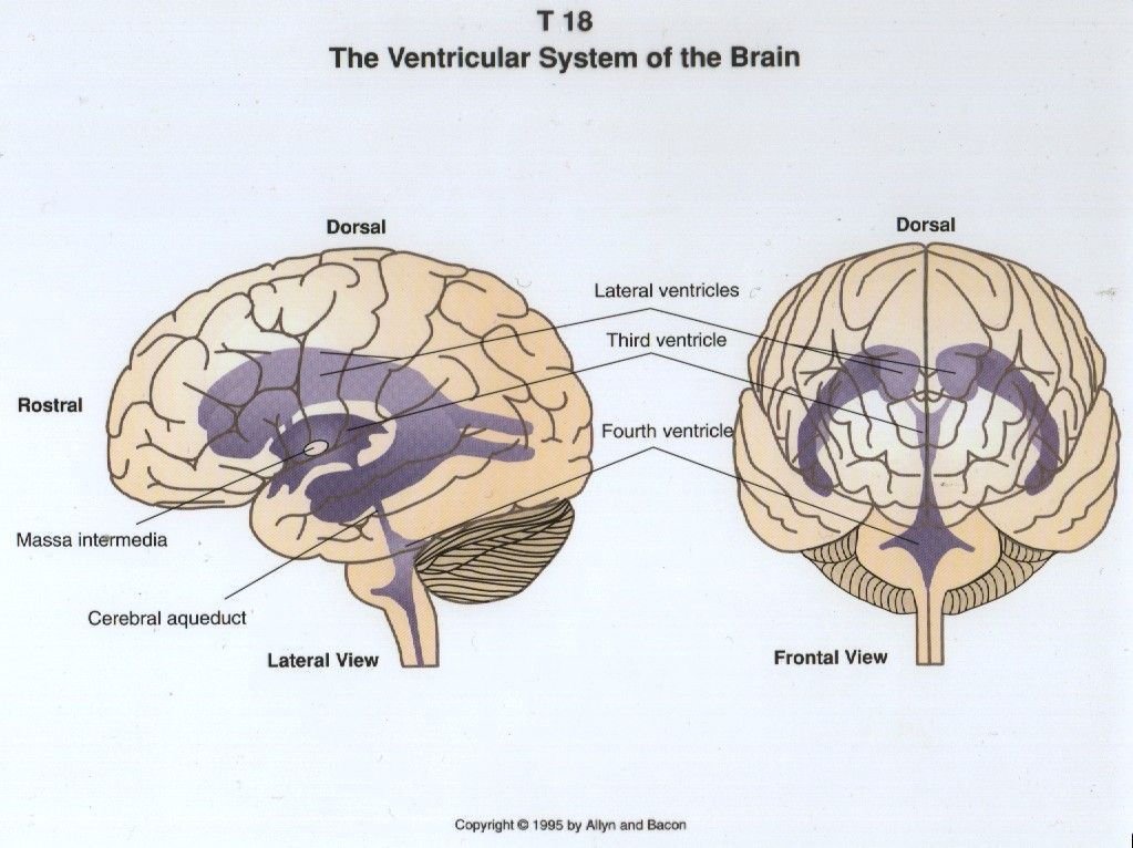 Ventricular system of the brain Neonatal neurosonography ...