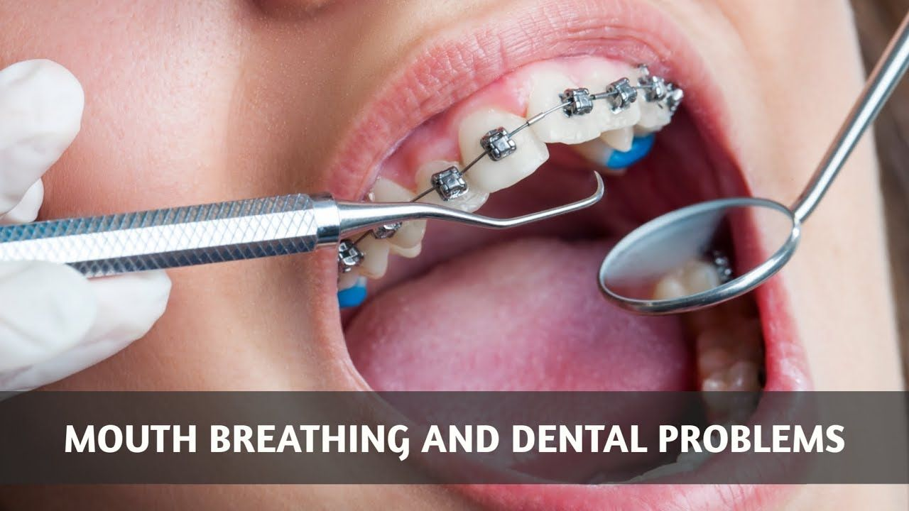 How mouth breathing can lead to a wide range of dental