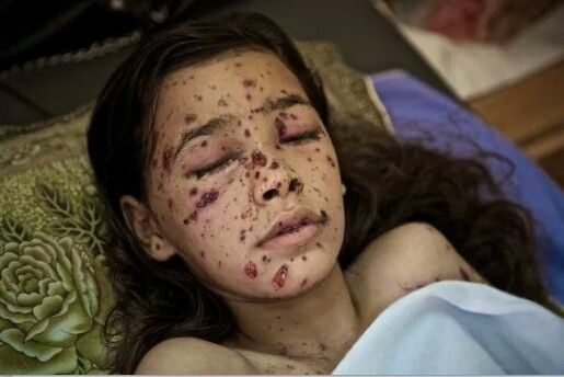 8 year old Dahlia only just made it after being sprayed by shrapnel from an Israeli F16, are you boycotting Israel yet? Or do you need more reasons. You can also download the buycott app.