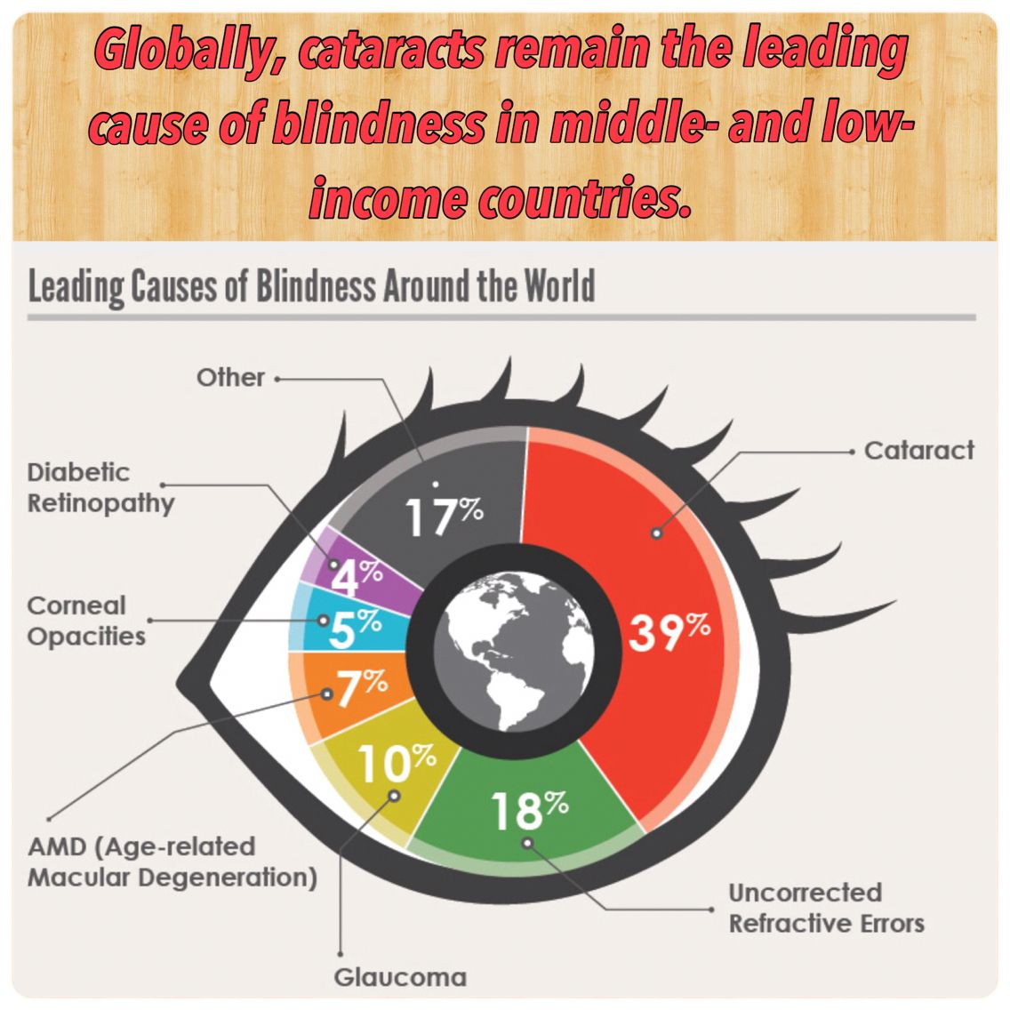 globally cataracts remain the leading cause of blindness in middleand low