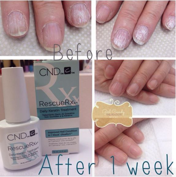 Another dramatic before and after image of Nail Pro Brooke\'s ...