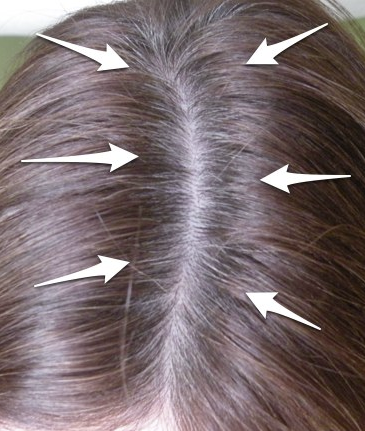 Inexpensive way to cover grey hair between colorings. Before ...