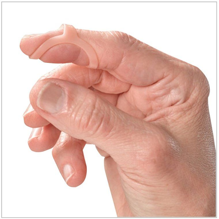 Oval-8 Finger Splint - shown for mallet finger | Anatomy | Pinterest ...
