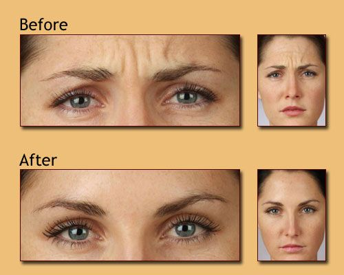 Botox Or Dysport For Frown Worry Lines Rejuvenation