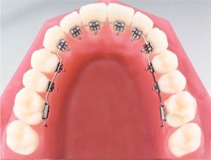 Incognito Braces Go Behind The Teeth Dental Braces Orthodontics Lingual Braces