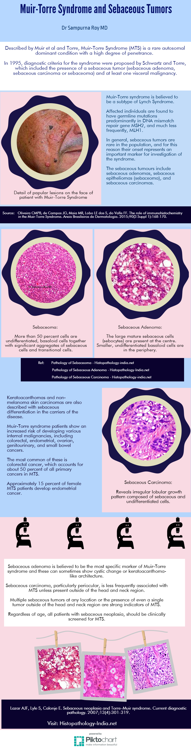 Muir-Torre Syndrome and Sebaceous Tumors [Pathology Infographic]