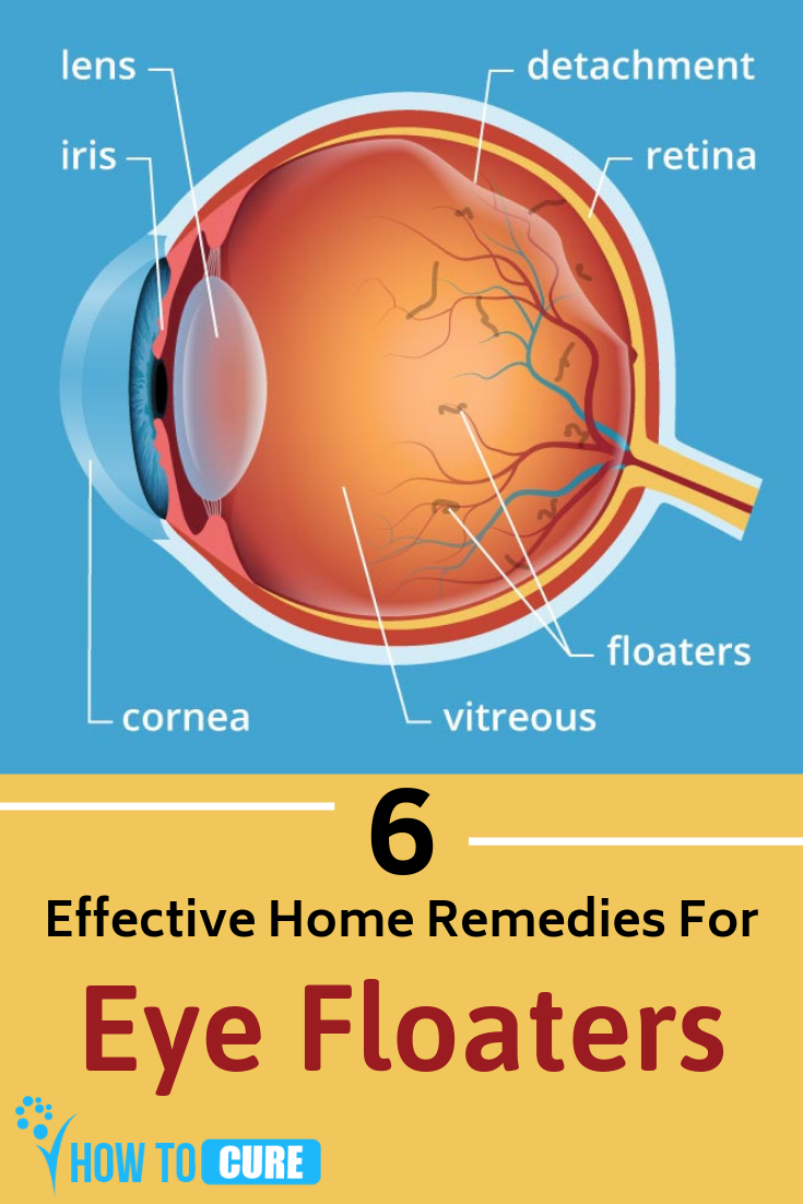 How to Get Rid of Eye Floaters with Terrific Natural Remedies | Home