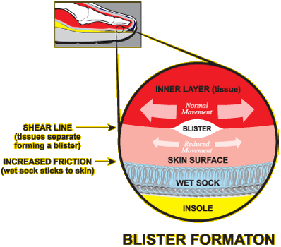 water blisters diagram wiring diagrams lose Blister Clusters On Feet water blister diagram wiring diagram foot diagram water blister diagram