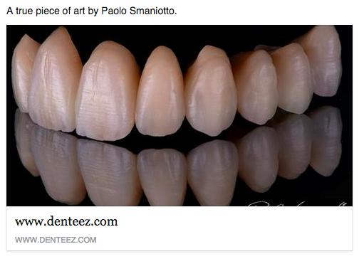 Denteez The Home Of Dentistry Www Denteez Com Dentistry Professional Networking Denteez Anatomía Dental Estetica Dental Dental