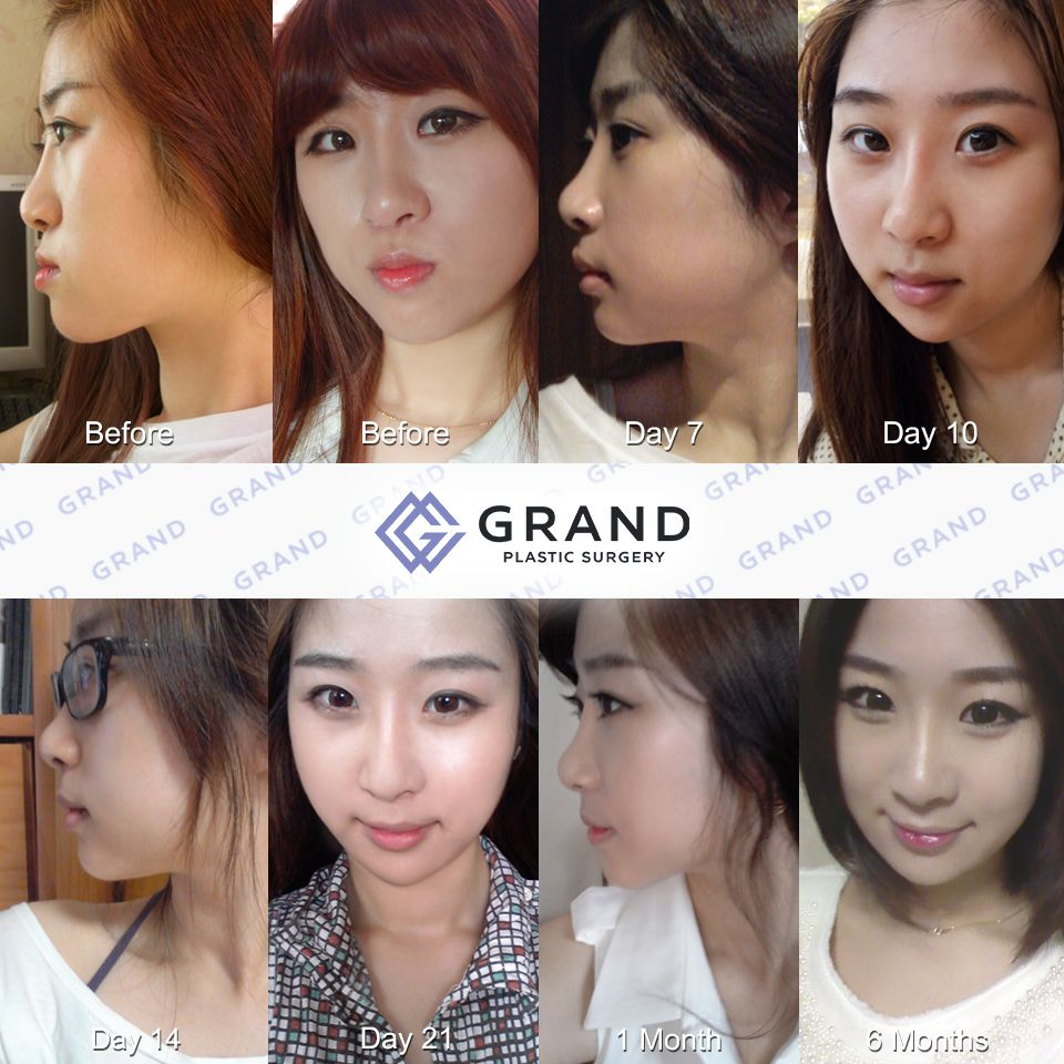 grand's two jaw surgery:) for free consultation tel: (+82) 70-7119