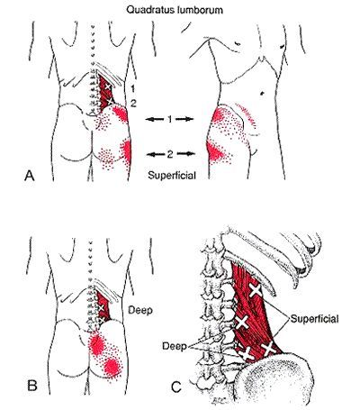 trigger points in the quadratus lumborum muscle refer pain