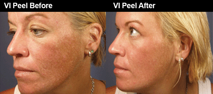 Pin On Chemical Peels