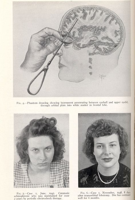 lobotomy a historical procedure Psychosurgery history and early prefrontal lobotomy burkhardt reported the first use of psychosurgery modern times in 1891 (cosgrove, rauch, 2005) the most well-known example of dramatic psychosurgery is that of a prefrontal lobotomy.