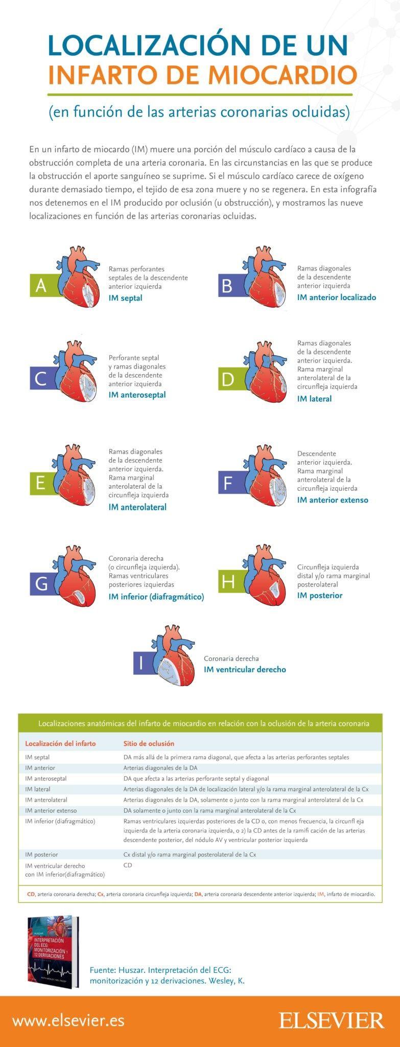 Localización de un Infarto de Miocardio, en función a las arterias ...