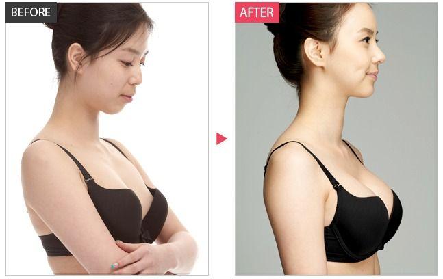 Making beautiful natural-looking and breasts. Beautiful