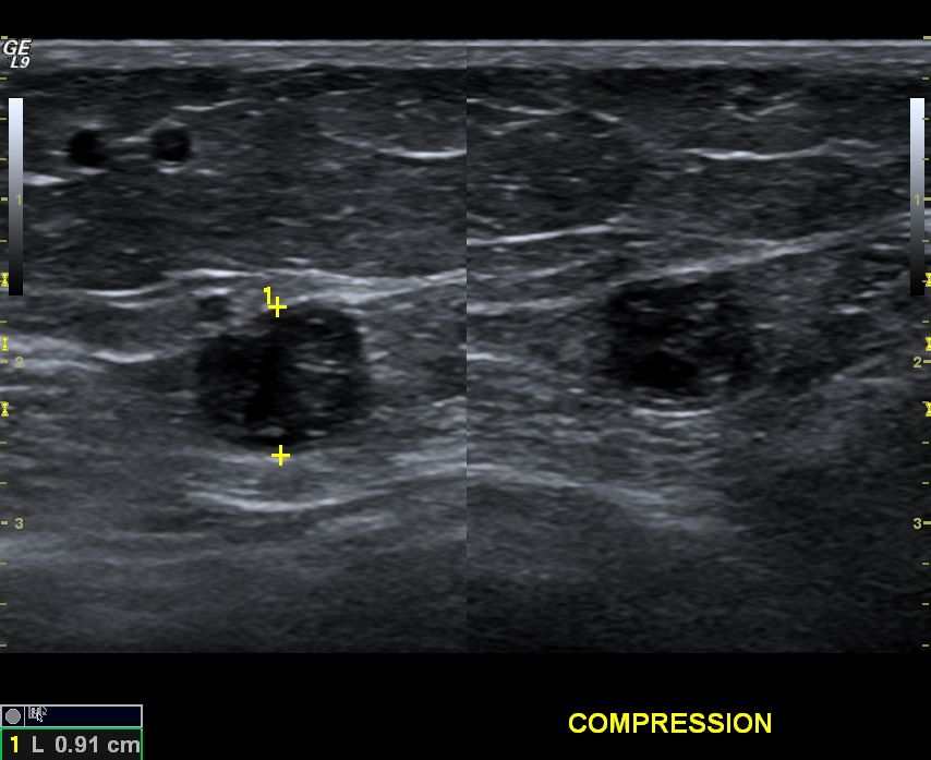 thrombophlebitis of the great saphenous vein, which is enlarged, Cephalic Vein
