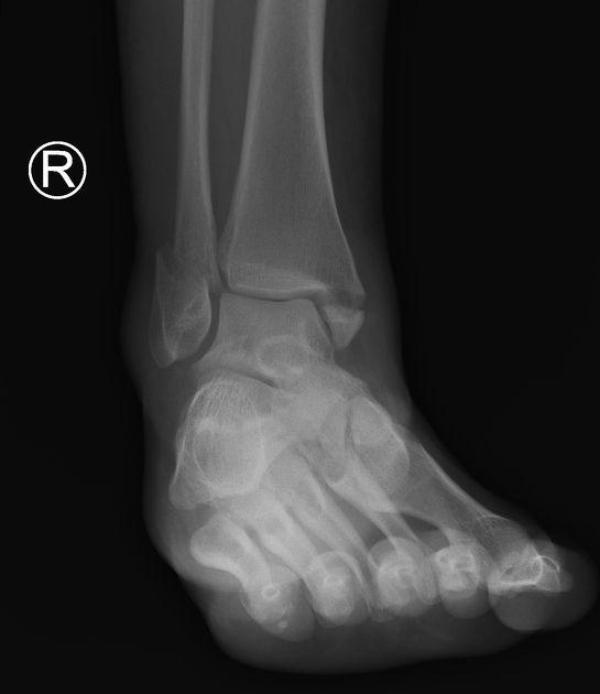 Bimalleolar ankle fracture   Radiology Case   Radiopaedia.org   Ankle  fracture, Radiology, Radiology imaging