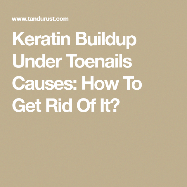 Keratin Buildup Under Toenails Causes How To Get Rid Of It
