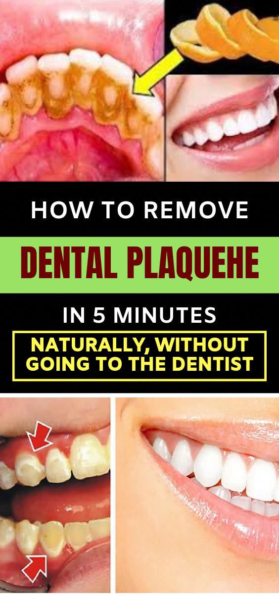 Zahnbelag ist die Ansammlung von Speiseresten sowohl von den inneren als auch von den äußeren Zähnen …   – Natural Medicine