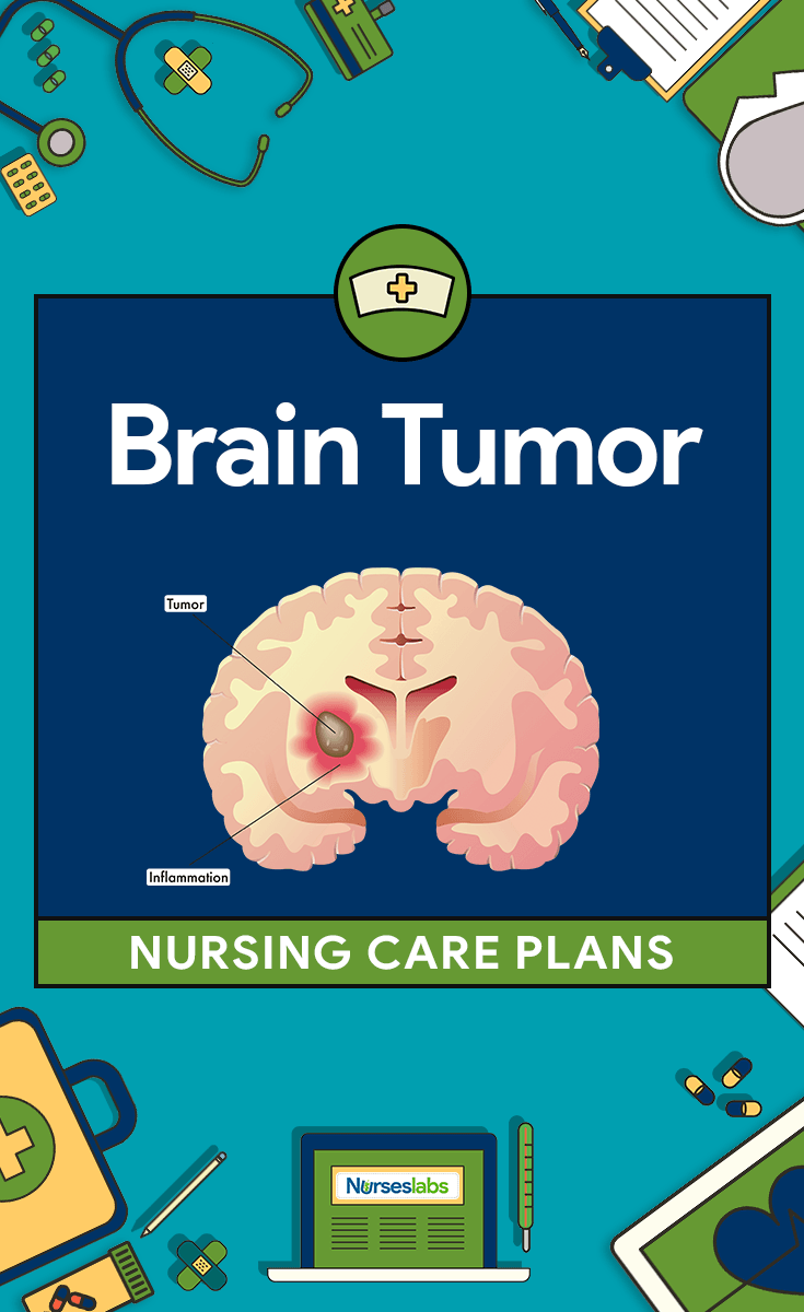 3 Brain Tumor Nursing Care Plans | Nursing Care Plans