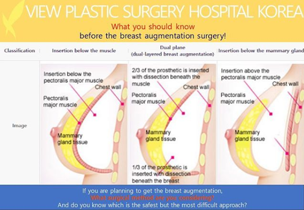 Pin On Breast Surgery