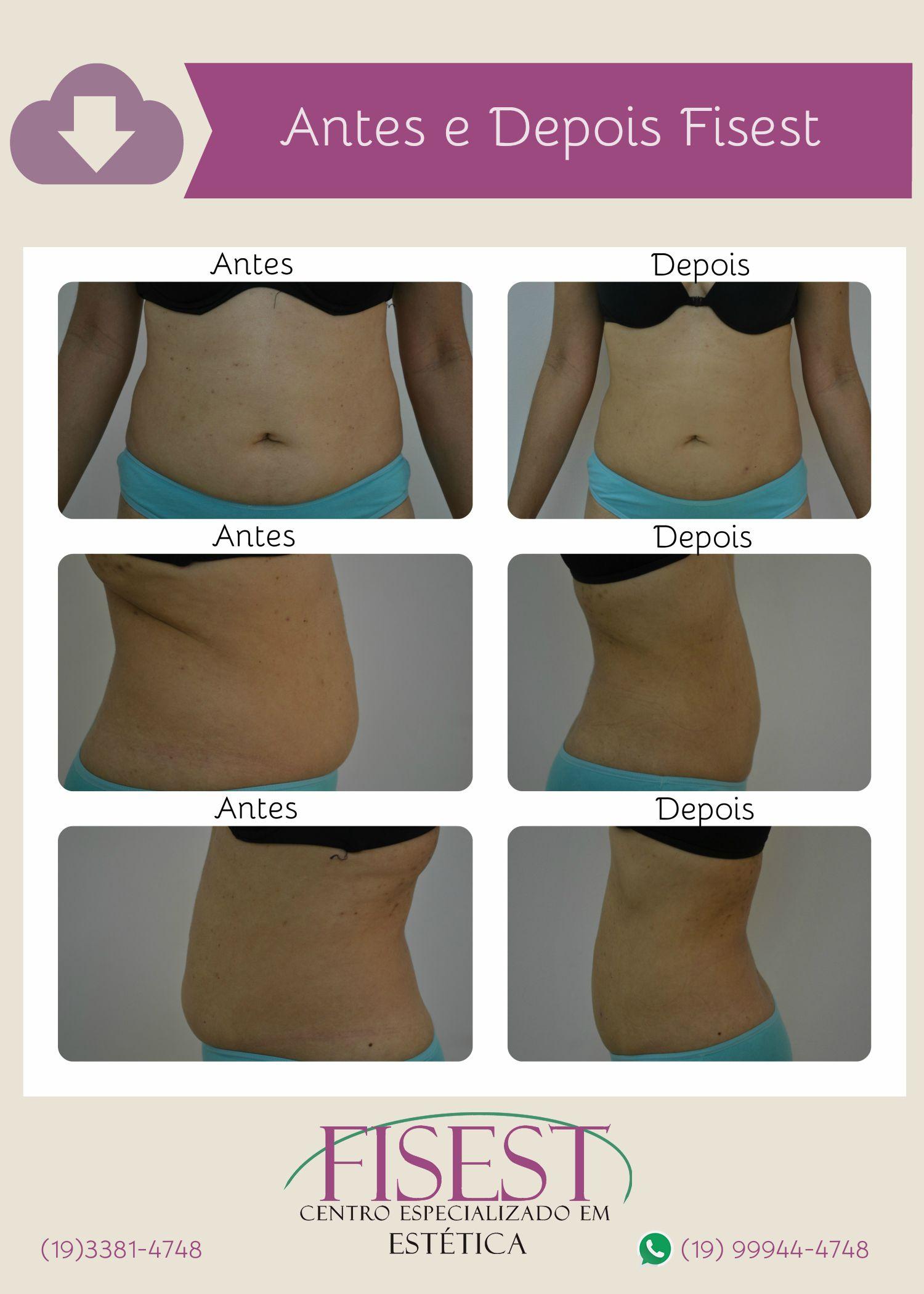 Antes E Depois Tratamento Para Reducao De Gordura Localizada