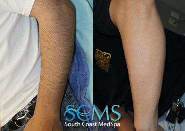 Actual Scms Patient Laser Hair Removal Arm Call 1 877 650 7267 To