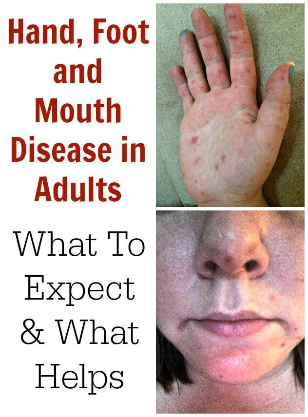 Hand Foot And Mouth Disease In Adults What To Expect
