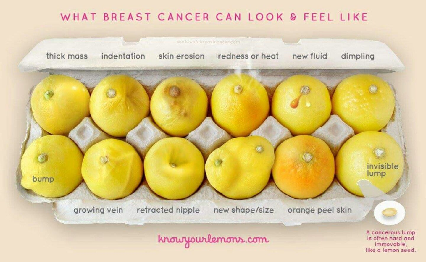 How breast cancer looks and feels...
