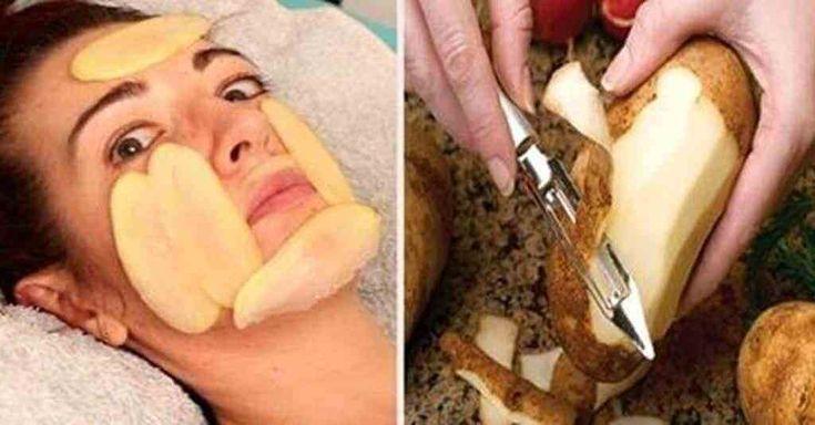 Coloque a batata no rosto, conheça um tratamento natural   - Beleza - Estética -