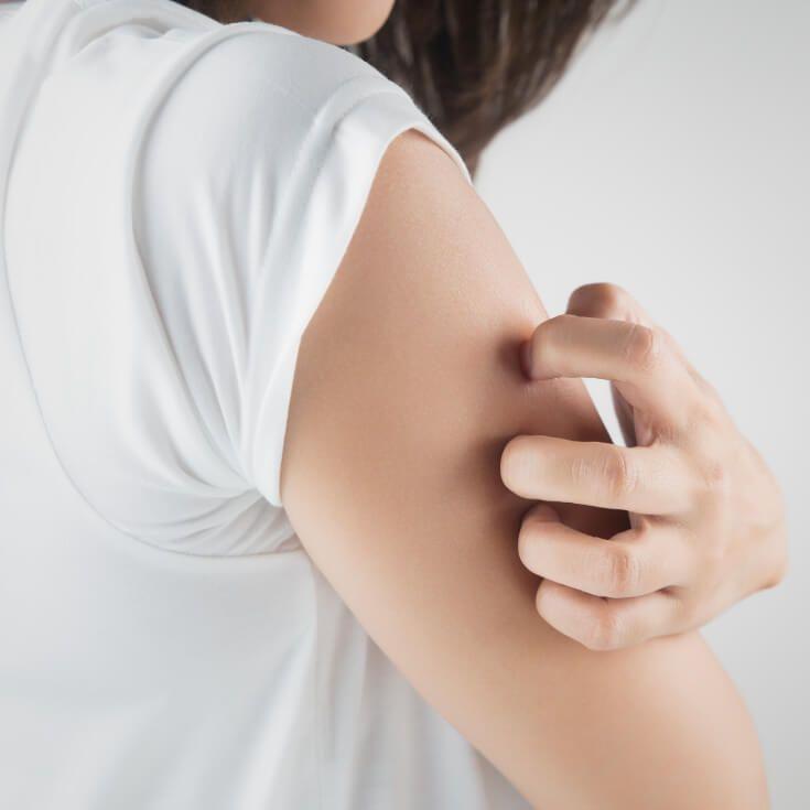 What Are Eczema Symptoms? Plus 5 Natural Treatments