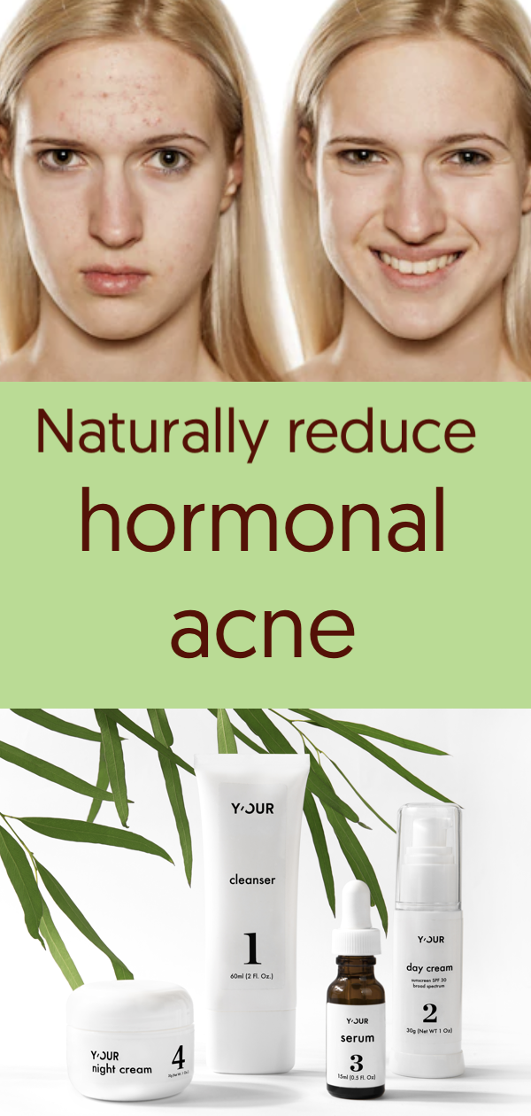 Personalized Skin Care Regiment To Naturally Reduce Acne Acne