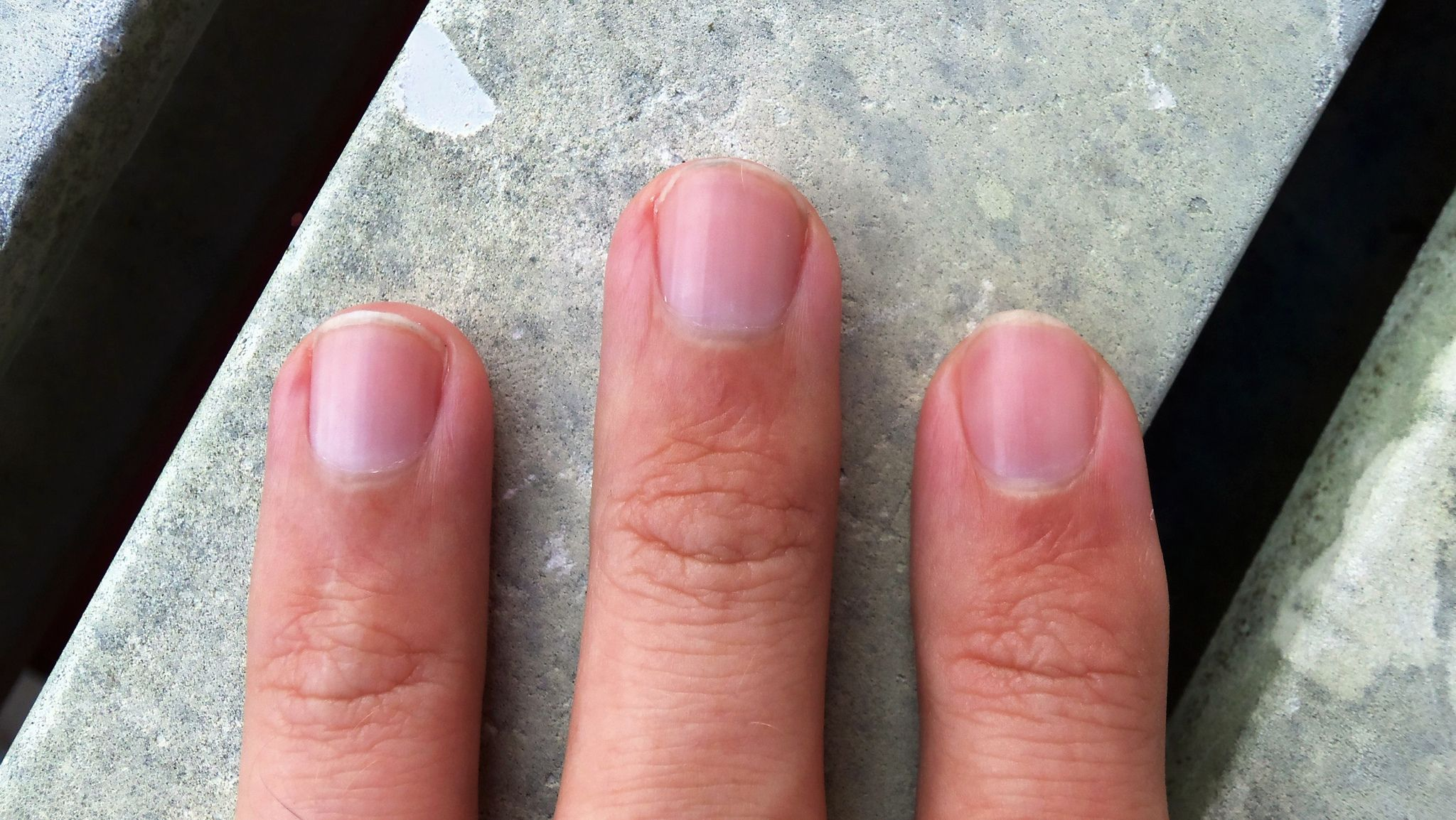 What Your Nails Are Trying To Tell You About Your Health ...
