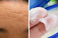Vive Por Mas Tiempo: Cremas naturales para atenuar las arrugas de la frente